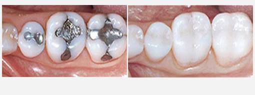 Dental Fillings at Torgersen Dental | Camarillo, Simi Valley