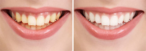 teeth whitening at torgersen dental before after