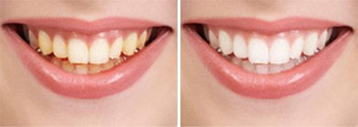 Teeth Whitening At Torgersen Dental Camarillo Simi Valley